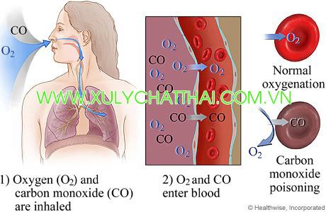 Ngộ độc khí CO